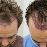 L'importanza del trapianto di capelli come soluzione per la calvizie